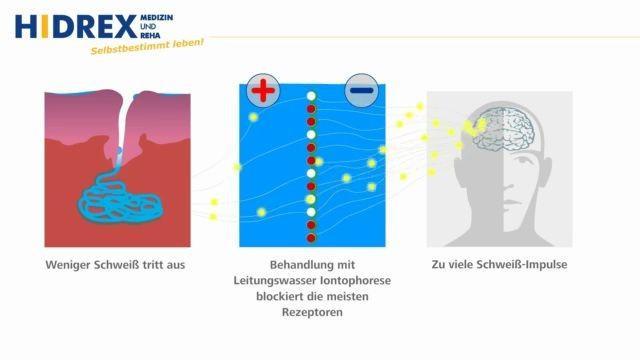 Erklaervideo Hidrex Funktionsweise und Behandlung von Hyperhidrose mit Leitungswasser Iontophorese thumb